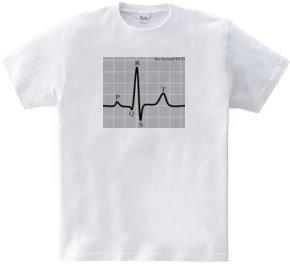 198-ECG(normal)